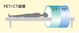 日本体检之什么是PET-CT?
