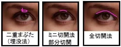 微信截图_20170217102511