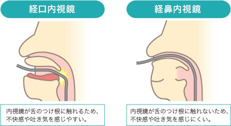 endoscopy_point_img1