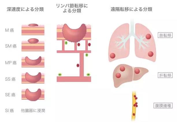 腹膜 播種 名医