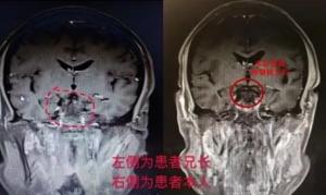 日本体检看病资讯|吃惊!兄弟俩先后在同一部位查出脑瘤!听听日本体检专家如何分析