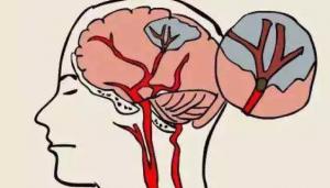 日本体检看病资讯|日本体检告诉你为什么40岁后必须做脑部精密检查?