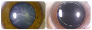 日本体检看病资讯|日本医疗快讯:白内障人工镜片置换术