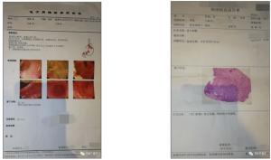 2位胃癌患者海外医疗案例,结局截然不同