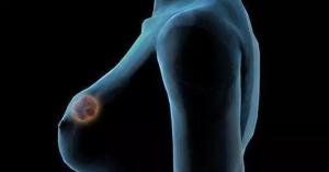 日本体检保护您的乳房
